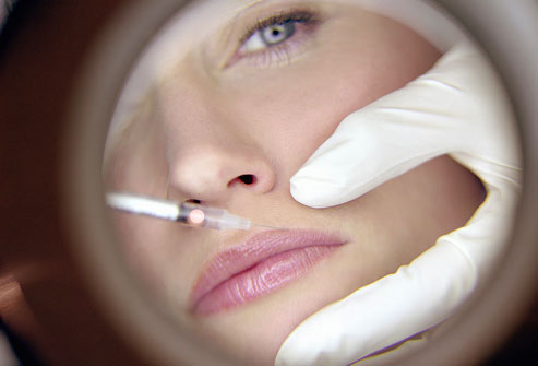 Non-Surgical Cosmetic Facial Procedures from WebMD.com
