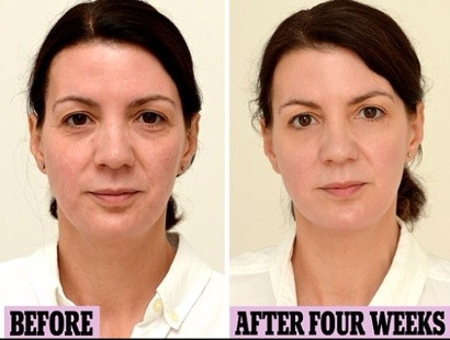 The Simple Thing You Can Do to Take 10 Years off Your Face