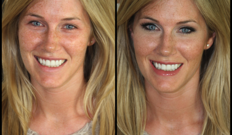 Makeup Before and After: A Perfect Example of Why Not to Cover Up Freckles