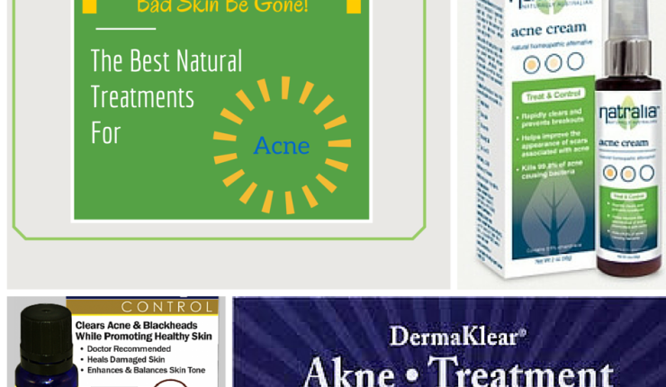The Best Natural Treatments for Acne