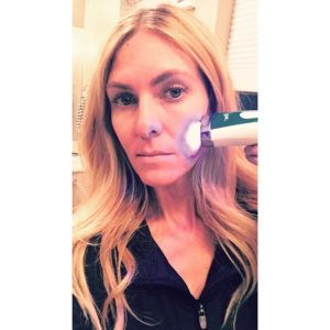 How the Silk'n Blue Works to End Acne