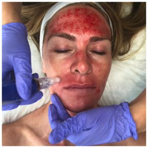 What are the Benefits of a Vampire (PRP) Facial and What Does the Procedure Look Like? (Graphic)